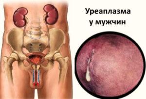 симптомы уреаплазмы фото