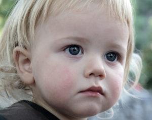 бледный цвет кожи у детей фото