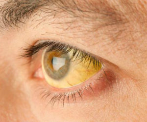 симптомы гепатита а у мужчин фото