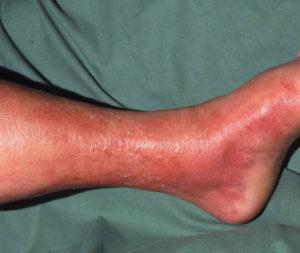 рожистое воспаление на ноге фото