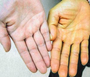 симптомы гепатита а у женщин фото
