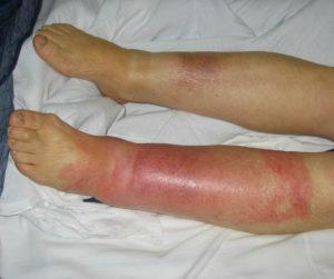 рожа на ноге фото