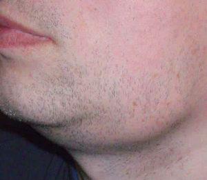 увеличение подчелюстных лимфоузлов при герпесе фото