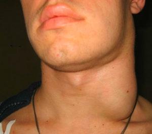 опухла шея фото