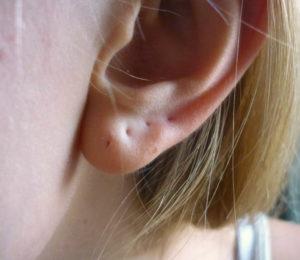 гноится мочка уха после сережек фото