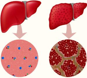 симптомы гепатита б у женщин фото