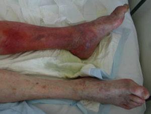 рожистое воспаление на ногах фото
