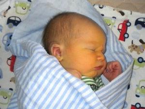 желтый цвет кожи у месячного ребенка фото