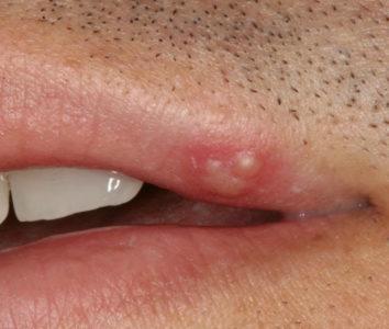 Из-за чего на губе может появиться болячка?