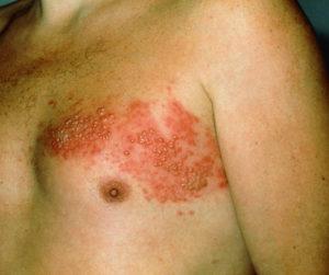 симптомы опоясывающего герпеса фото