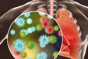 признаки пневмонии при ковиде