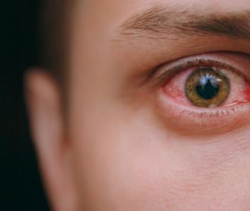 Боль в глазах при коронавирусе — насколько опасен симптом?