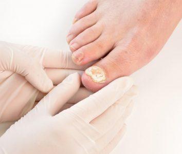 Онихомикоз — грибковая инфекция ногтей