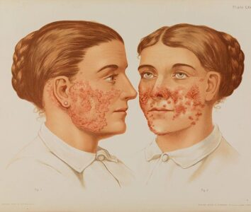 Туберкулез кожи: причины, виды, симптомы и лечение